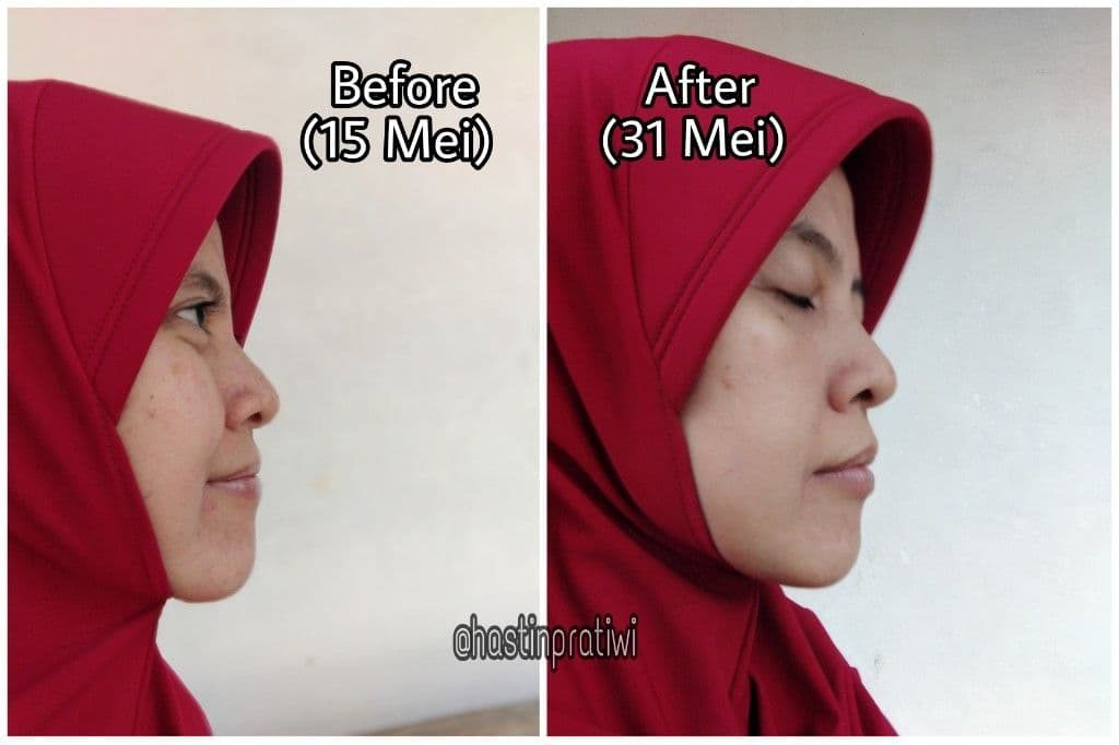 foto before after serum scarlett brightly ever after